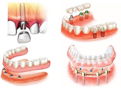 протезування зубів кременчук